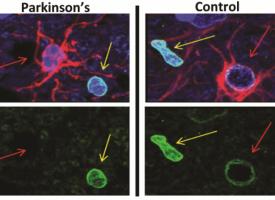 Un tipo de neuronas, posible diana para un tratamiento futuro del párkinson