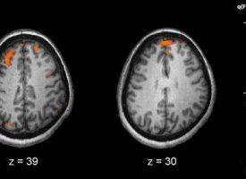 Descubren un nuevo mecanismo detrás de la esquizofrenia