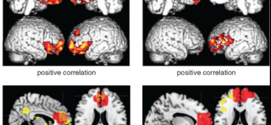 Una técnica permite detectar el Alzheimer años antes de los primeros síntomas