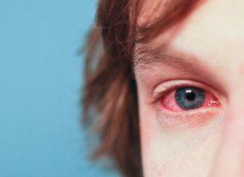 Vinculan las alergias con un mayor riesgo de padecer trastornos psiquiátricos