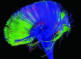 Tener ilusiones es bueno para el cerebro y para la salud